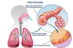 Hình ảnh bệnh viêm phế quản