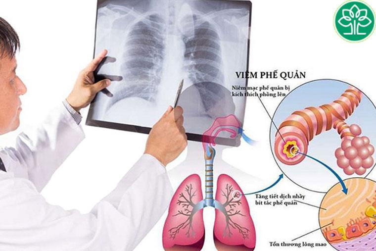 Hình ảnh viêm phế quản cấp