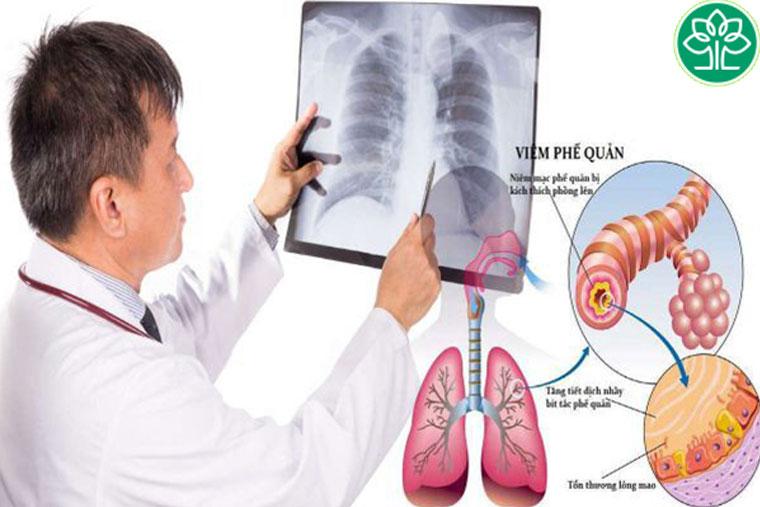 Viêm phế quản phổi căn bệnh nguy hiểm hiện nay