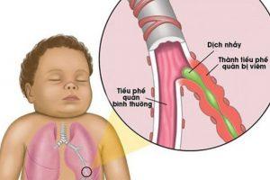 Bệnh viêm tiểu phế quản (ảnh minh họa)